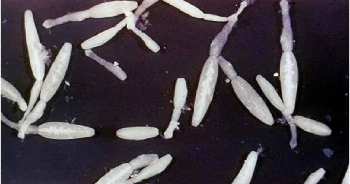 500 суворовцев находятся в смертельной опасности из-за эпидемии эхинококкоза