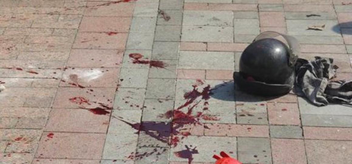 Омоновец подорвался на гранате, спасая жизнь подчиненного