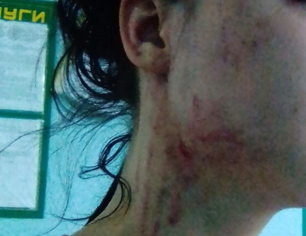 Анестезиолог ЦКГБ избил пациента после операции? В Ульяновске проводится проверка